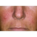 Dermabrasion and Cosmetic Surgery for Rosacea