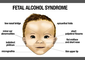 Fetal Alcohol Disorders Are Equally >> Fetal Alcohol Syndrome