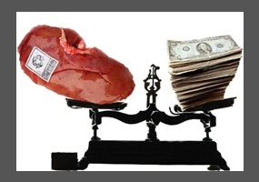 This House would legalize the sale of human organs | idebate org