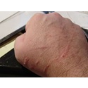 Cat Scratch Fever Symptoms