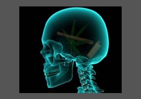 brain damage caused by heavy marijuana Chronic marijuana smoking affects brain chemistry from join together [dot] org  marijuana use could cause permanent brain damage.